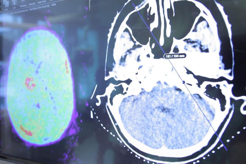 Laborant Klinische Neurofysiologie